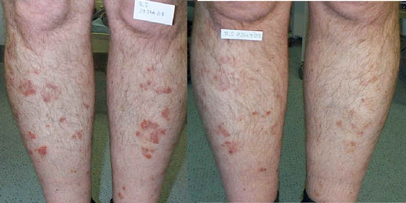 Natural Treatments For Psoriasis Arthritis